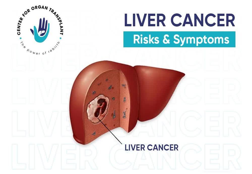 liver-cancer-its-risks-symptoms-1