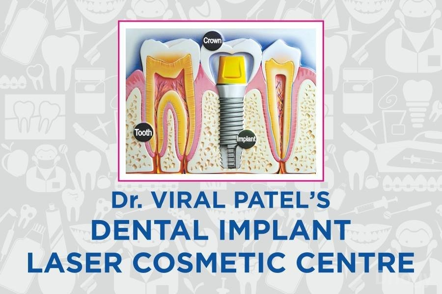 Dental Implant Laser Cosmetic Centre in Ahmedabad